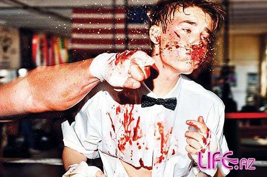 Джастин Бибер был избит в новой фотосессии